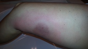 Sting site after 3 days.  It started as small as near the bruise area by the stinger entry and then expanded quickly over 2 days.