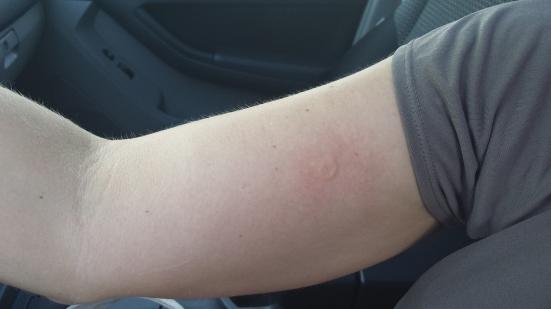 sting 1